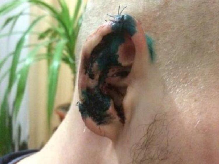 Божевільний Опоблок – депутат відкусив вухо активісту